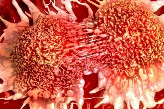 Dari RSUD Arifin Achmad: Kenali Faktor Resiko Terjadinya Kanker