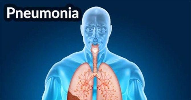 Gratis, Seminar Awam Pneumonia dan Diabetes di RSUD Arifin Achmad Lusa