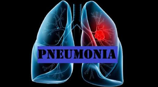 Dari RSUD Arifin Achmad: Waspadai Pneumonia atau Paru-paru Basah pada Anak
